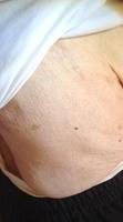 zona psoriasis guérisseur mérignac pessac bordeaux